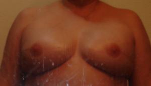 ImplantsW_Nipples